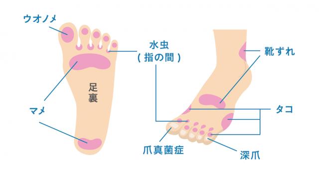 足の病変��起こりやすい主な場所
