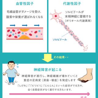 「糖尿病で足切断」とならないために〜 糖尿病が及ぼす足の神経障害 〜